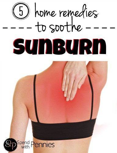 5 Home Remedies to Soothe Sunburn